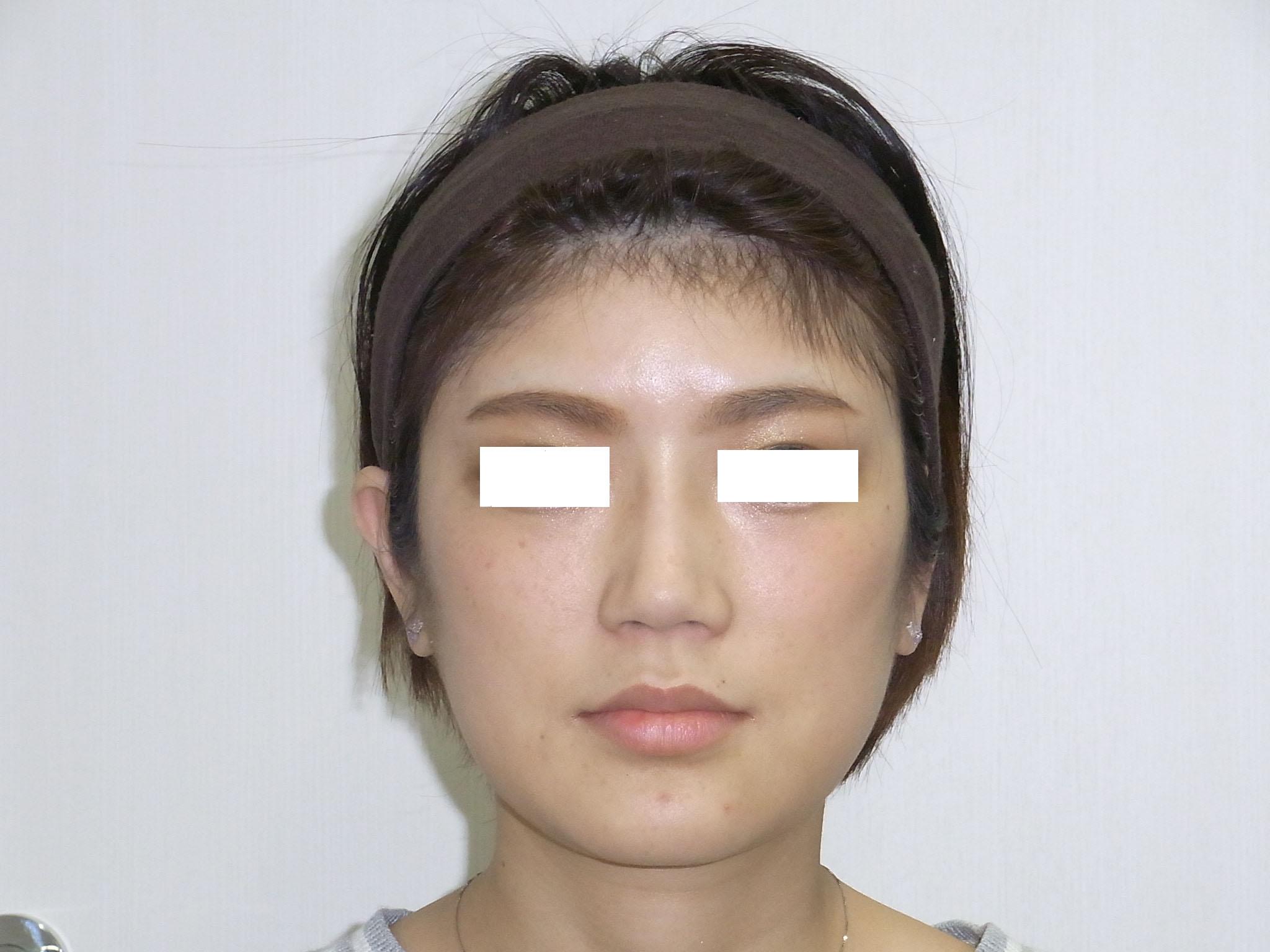 nose2016.5C.jpg